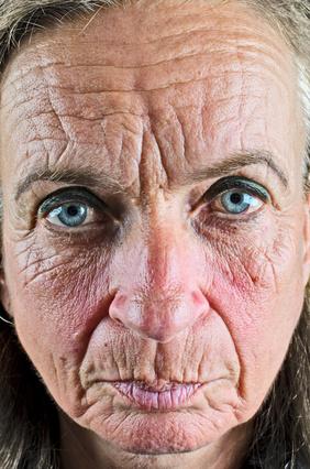 Wrinkled Face Wrinkled face
